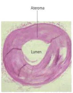 Arteria con ateroma